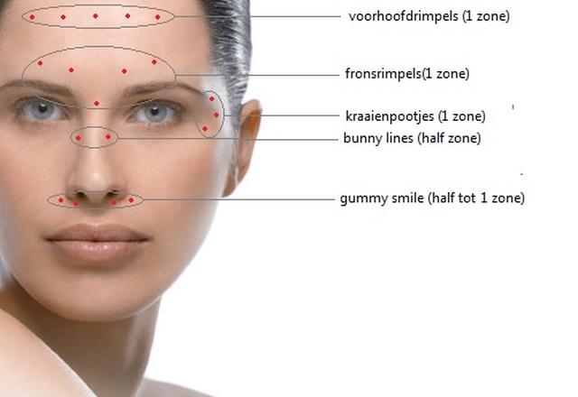 behandelgebieden-botox